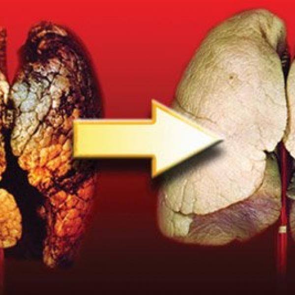 E' vero che svapare fa male come fumarele sigarette al tabacco ?